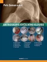 Artroskopie kyčelního kloubu