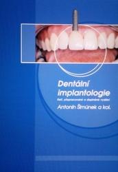 Dentální implantologie