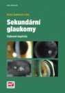 Sekundární glaukomy